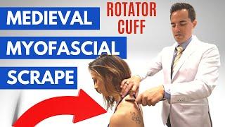 GRASTON TECHNIQUE for rotator cuff