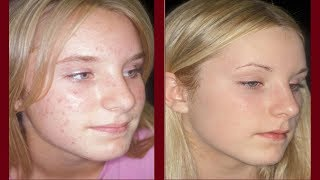 Acne treatment: Top 5 Ways to Get Rid of Acne Fast || Banish Blackheads and Achieve Clearer Skin