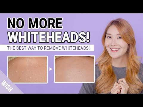 How To Remove Whiteheads, Small Bumps | Whitehead Removal To Prevention Care Routine | Wish,Try,Love
