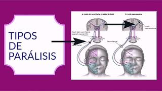 Parálisis facial + Concepto + Tipos + Síntomas + Tratamiento