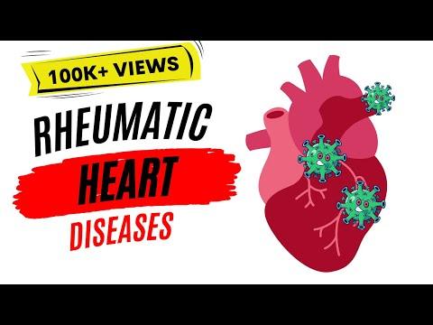 Rheumatic Heart Disease | Rheumatic Fever |