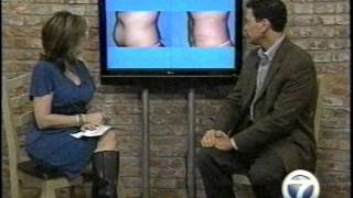 Liposuction and Stubborn Fat with Little Rock Cosmetic Surgeon Dr. Rhys Branman Thumbnail