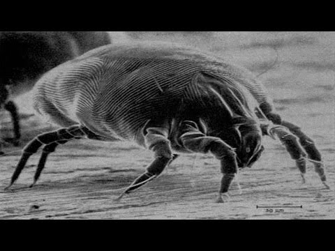 15 Ways To Get Rid Of Dust Mites Quickly Youtube