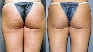 About Butt (Gluteal) Rejuvenation Treatments in Miami