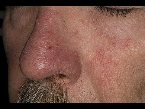 Seborrheic Dermatitis Causes, Treatment & Pictures