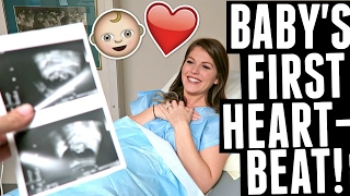 Hearing Baby's Heartbeat for the First Time!! 11 week Ultrasound