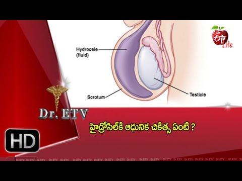 Dr Etv - Hydrocele Treatment - 14th April 2016 - డాక్టర్ ఈటివీ