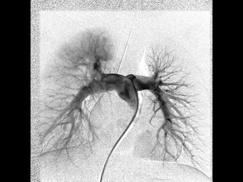 PULMONARY ARTERY.  ANGIOGRAPHY