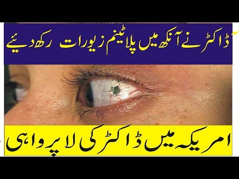 American Doctor nay Ankh Main jewellery Chor D