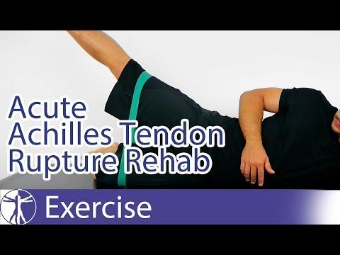 Acute Achilles Tendon Rupture Repair Rehab