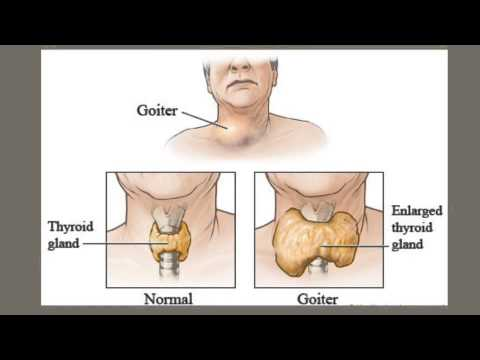 Graves' Disease Education