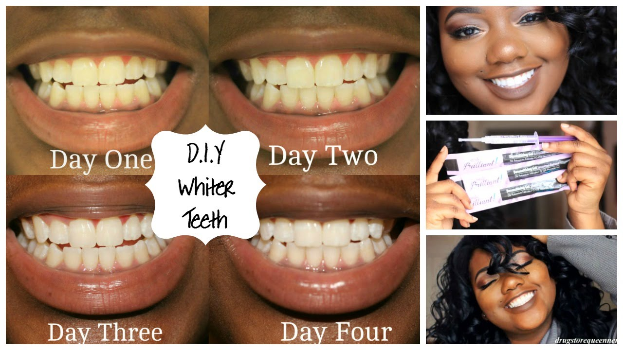 D I Y How To Get Whiter Teeth At Home Smile Brilliant Youtube