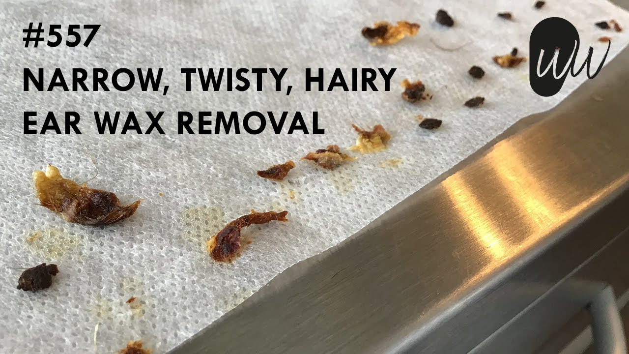 557 - Narrow, Twisty, Hairy Ear Wax Removal