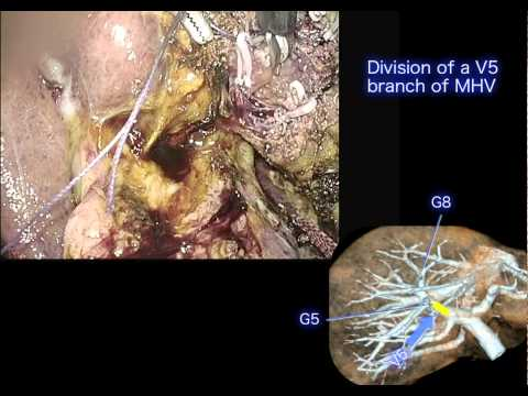 Laparoscopic liver resection,  Mitsubishi Kyoto Hospital, F. Oike M.D.