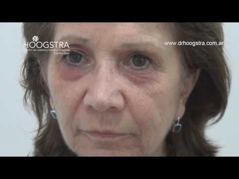 Cirugía de Párpados y Bolsas. Blefaroplastía. Láser de CO2 (14003)