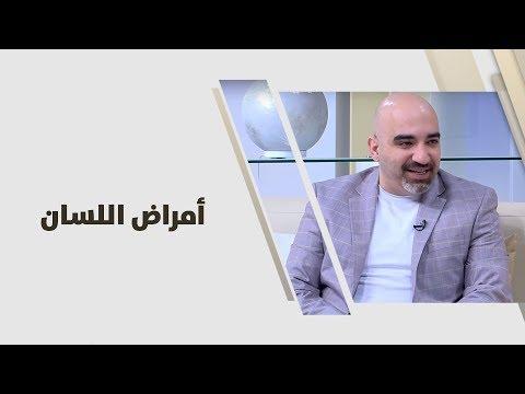 د. خالد عبيدات - امراض اللسان - طب وصحة