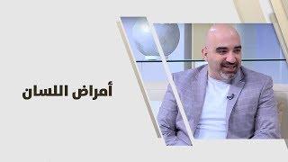 د. خالد عبيدات - امراض اللسان