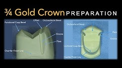 3/4 Gold Crown Preparation