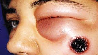Anthrax Disease!  Information, Treatment & Photos