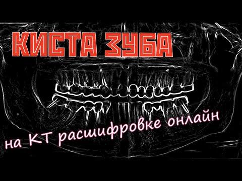 Радикулярная КИСТА ЗУБА на повторной РАСШИФРОВКЕ КТ зубов