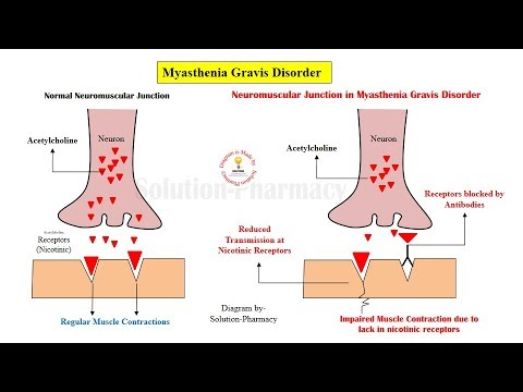 Myasthemia Gravis- Explanation with Animation (Physiology and Mechanism of Action)