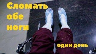 Сломал обе ноги. Один день. Батутный центр Атмосфера.