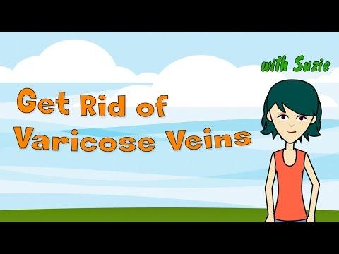 get-rid-of-varicose-veins