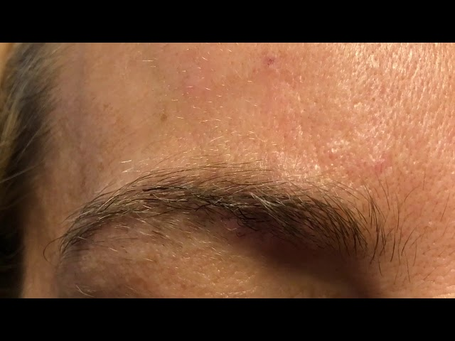 Dallas Female Partial Eyebrow Hair Transplant 2 Weeks Post