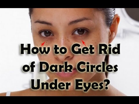 How to Get Rid of Dark Circles Under Eyes? Get Solution ...