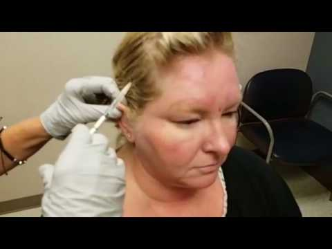 Botox for Migraines at Mercy