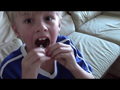 Лечение аллергии у ребёнка (СЛИТ) в Германии