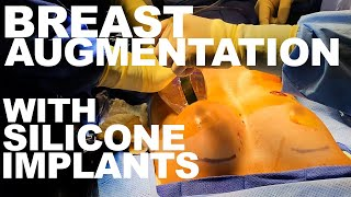Breast Augmentation with Silicone Implants - Dr. Paul Ruff   West End Plastic Surgery