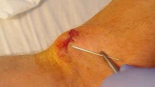 How To Give Yourself Stitches (Sutures)