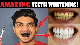 Teeth whitening at home with charcoal powder | HOW to whiten your yellow teeth naturally | hindi