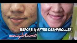 hqdefault - Dermaroller Before And After Pictures Acne