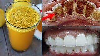 2 Dakika İçinde Sarı Dişlere Çözüm - İnci Gibi Beyaz Dişlere Nasıl Sahip Olunur ? - Güzellik Bakım