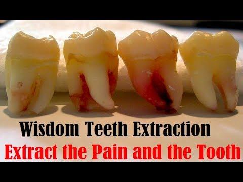 ฟันคุด หายปวดฟันคุดไม่ผ่าได้ไหม