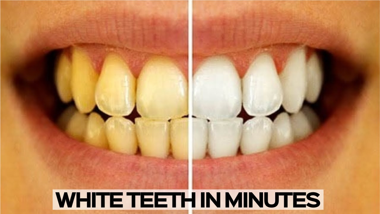 How To Whiten Your Teeth Easy And Quick Teeth Whitening Youtube