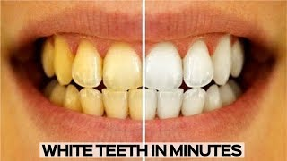 HOW TO WHITEN YOUR TEETH - EASY AND QUICK TEETH WHITENING