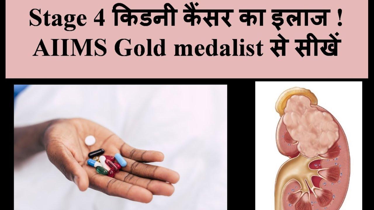 À¤¸ À¤Ÿ À¤œ 4 À¤• À¤¡à¤¨ À¤• À¤¸à¤° À¤• À¤‡à¤² À¤œ À¤‡à¤¨ À¤¹ À¤¦ 2018 Dm Aiims Stage 4 Kidney Cancer Treatment Hindi Youtube