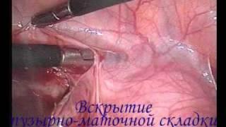 Лапароскопия удаление матки оперирует Штыров(Laparoscopy. Hysterectomy. Shtyrov., 2011-11-15T16:09:45.000Z)