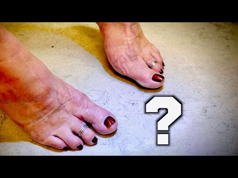 Why My Wife Has 8 Toes!   THE SHOCKING TRUTH   Dr. Paul