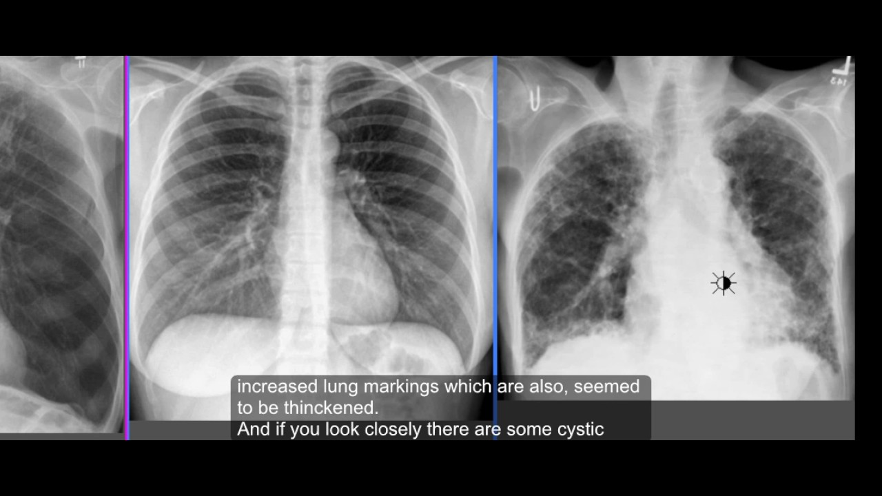 the difference and similarities of pneumonia and tuberculosis The differences and similarities of pneumonia and tuberculosi the differences and similarities of pneumonia and tuberculosis pneumonia and tuberculosis have been plaguing the citizens of the world for centuries causing millions of deaths this occurred until the creation and use of antibiotics become more widely available.