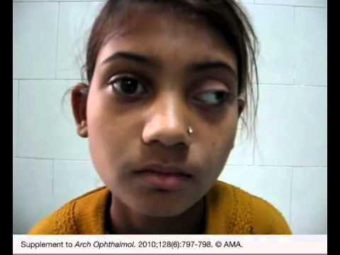Paralysis facial pdf free articles humans