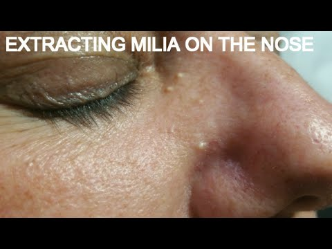EXTRACTING MILIA ON THE NOSE