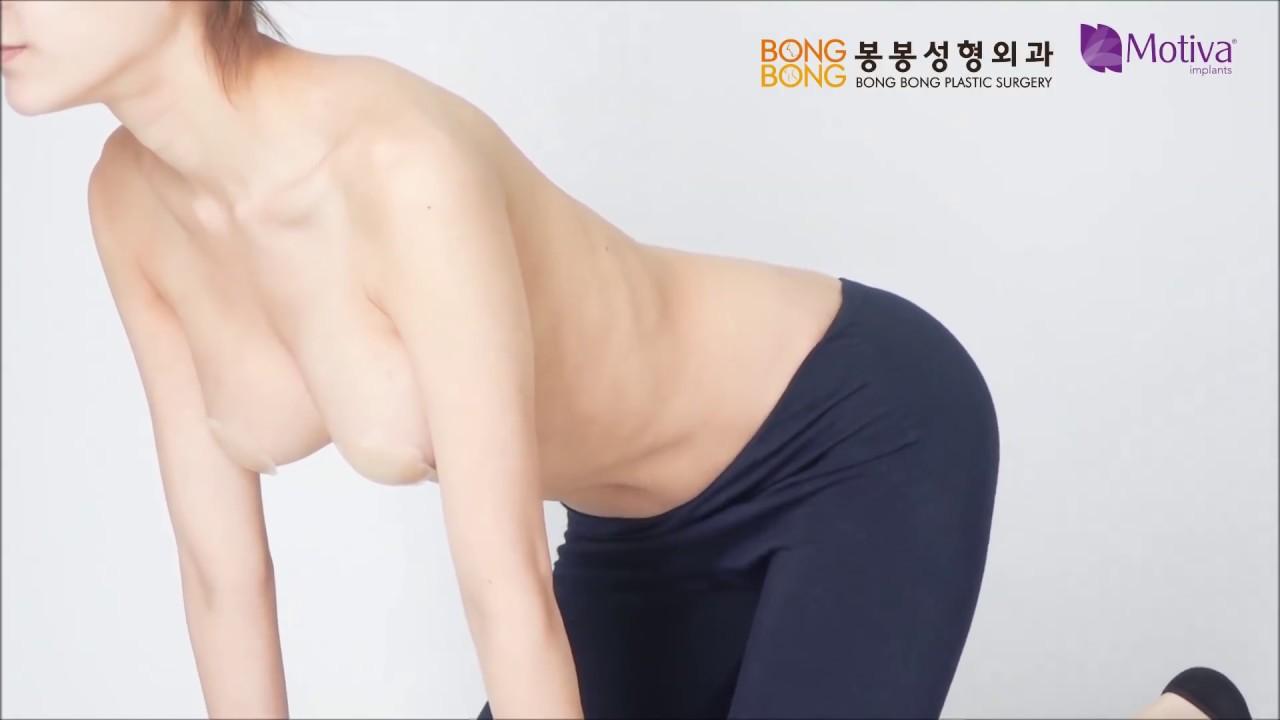 모티바가슴성형 리얼모델 자연스러운 가슴 움직임 영상! #1