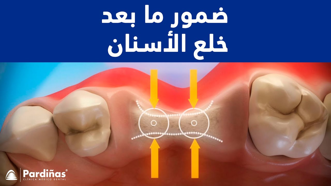 ضمور ما بعد خلع الأسنان C Youtube