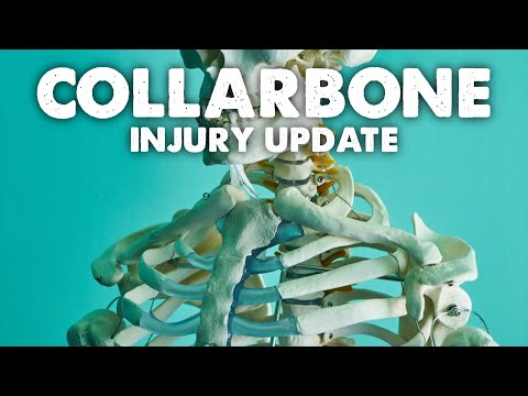 Collarbone Injury Update