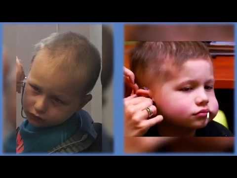 Hearing loss and cancer treatment:  Walter Jacobson's Perspective