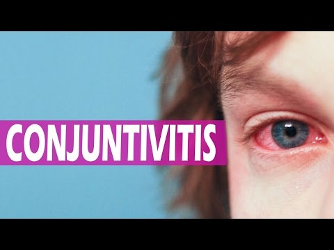 Infantil la remedios para conjuntivitis